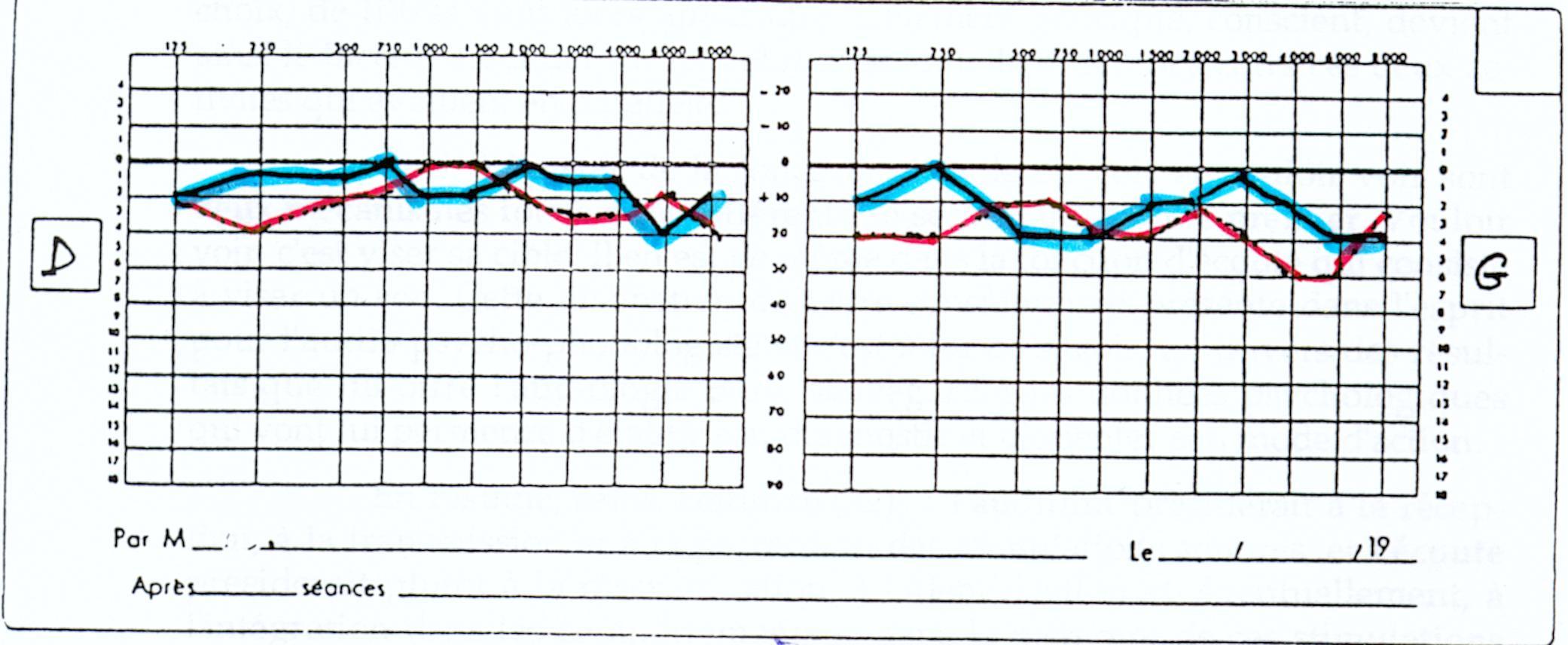L Audiogramme En Pediatrie